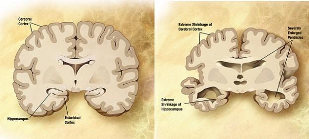 Alzheimer-gehirn-im-vergleich