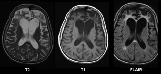 frontotemporale-demenz-MRT