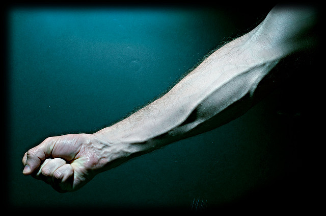 "Bild: ""Veins in my Right Arm."" von Colin Davis. Lizenz: CC BY 2.0"