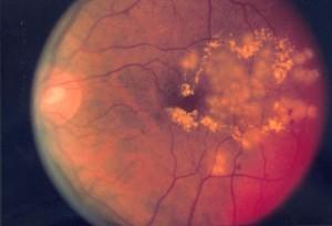 diabetische-retinopathie