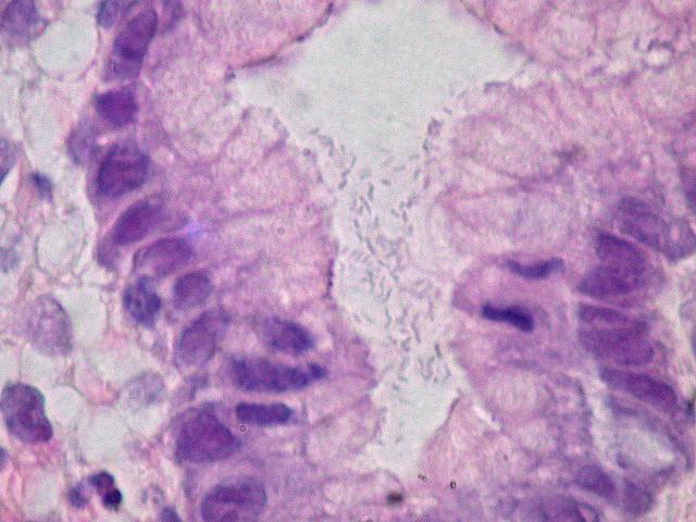 """Bild: """"Helicobacter pylori, Gastric Mucosa, H&E"""" von Ed Uthman. Lizenz: CC BY 2.0"""