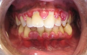 Gingivahyerplasie