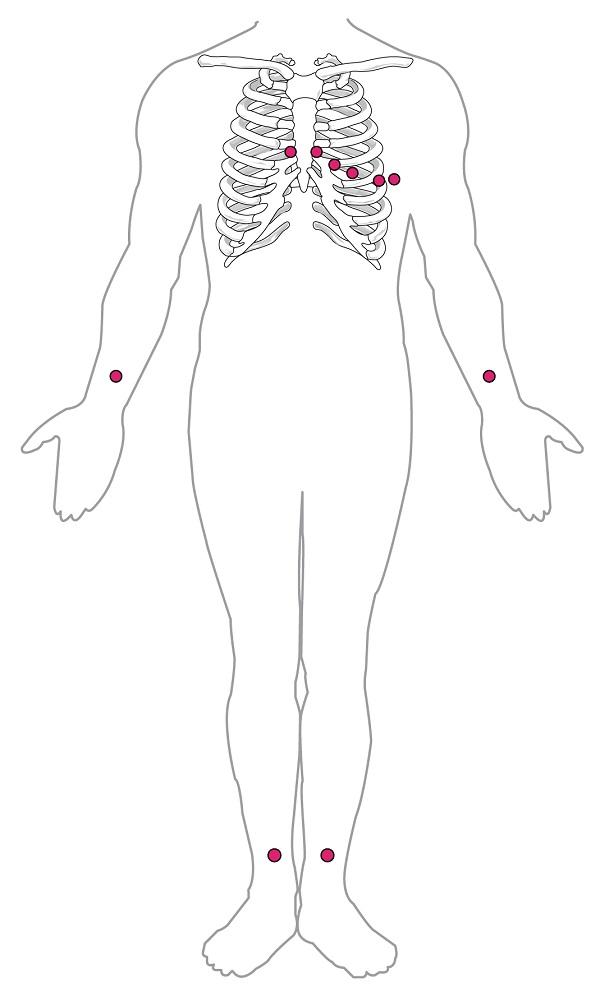 Stellen des EKG