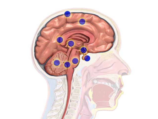 Regionen-von-Gehirnturmoren