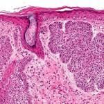 basalzellkarzinom-histologisch