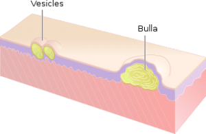 vesicula and bulla