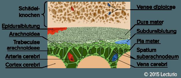 Epiduralblutung