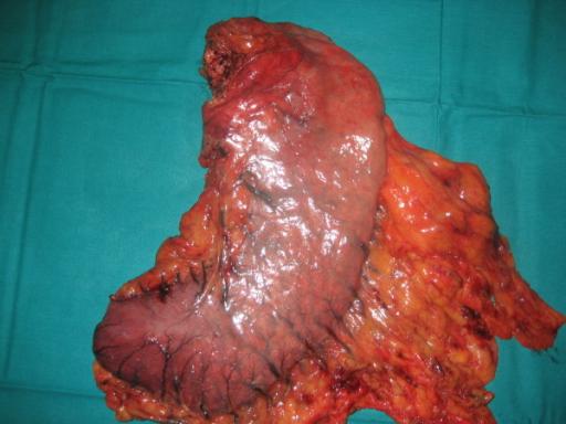 Magenkrebs bzw. Magenkarzinom: Aufnahme einer Resektion