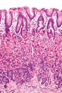 Vergrößertes Bild einer gesunden gastric mucosa