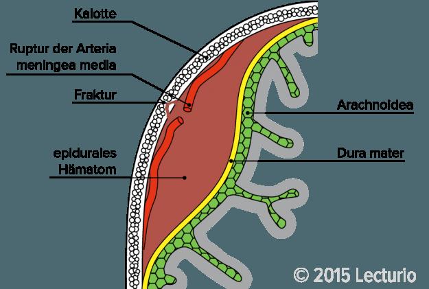 Schematische Darstellung eines Epiduralen Hämatoms