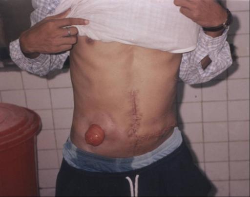Rektum Und Analkanal Anatomie Funktionen Amp Erkrankungen