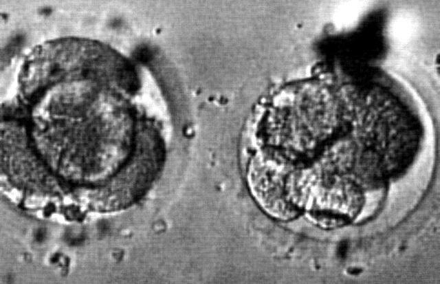 Zwei befruchtete menschliche Eizellen