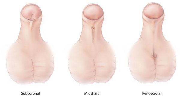 Unterschiedliche Typen der Hypospadie