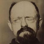 Gesichtslähmung durch Fazialisparese
