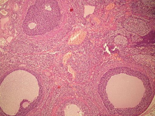 polyzystisches Ovarialsyndrom