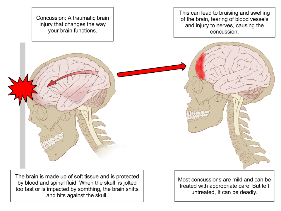 image of a Concussion because of brain injury