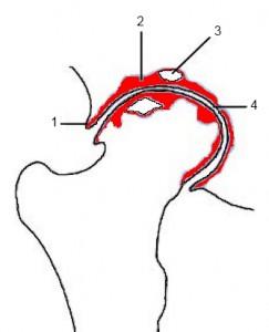 Schematische Darstellung der radiologischen Zeichen der Hüftgelenksarthrose: (1) (Rand-)Osteophyt (2) subchondrale Sklerosierung (3) Geröllzyste (4) Gelenkspaltverschmälerung