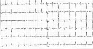 Abbildung einer normalen Herzfrequnz