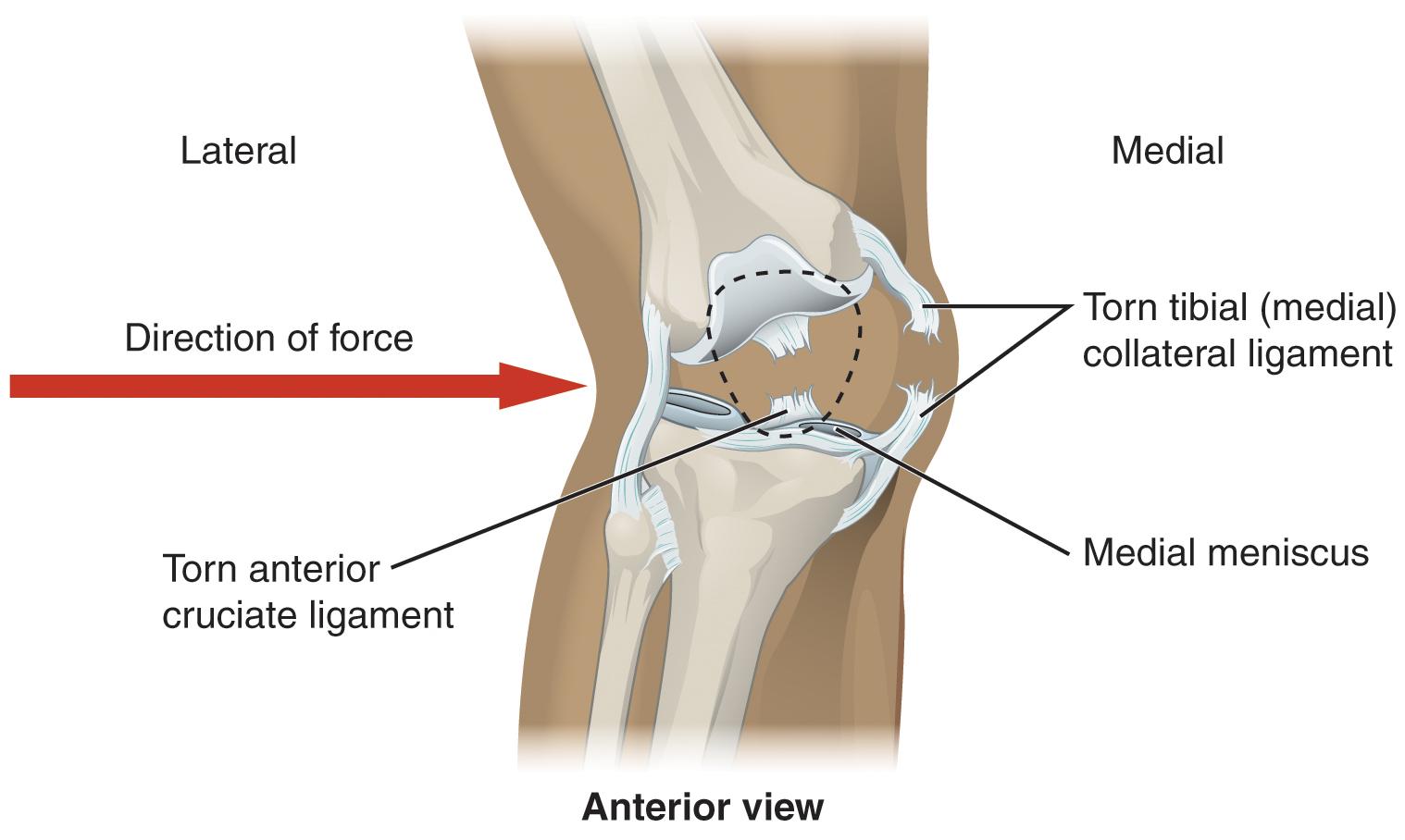 Das kniegelenk anatomie der unteren extremitt labeled diagram of a knee injury pooptronica
