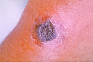 Milzbrandinfektion am Unterarm