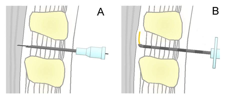 Unterschied Spinalanästhesie-Periduralanästhesie
