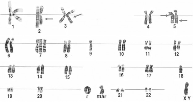 chromosomal mutations worksheet