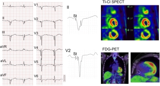 Fragmented QRS in a 52-year-old patient with cardiac sarcoidosis