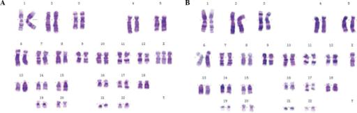 45XO_47XXX-karyotyp
