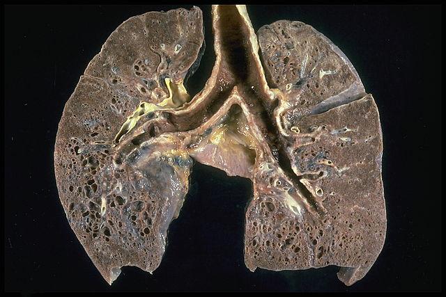 Pathologisches Präparat einer Lungensarkoidose im Endstadium