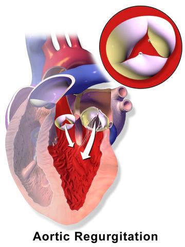 aortenklappeninsuffizienz � erworbene herzklappenfehler