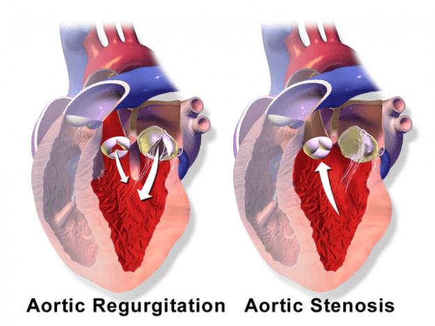 Aortenklappeninsuffizienz – erworbene Herzklappenfehler  Aortic
