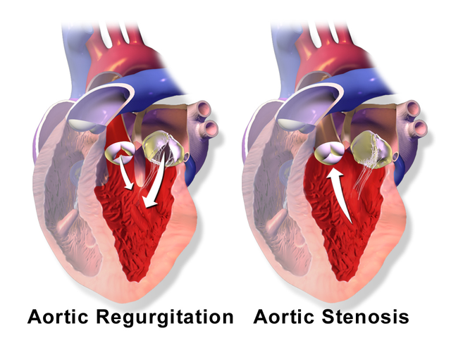 "Bild: ""Aortic Valve Regurgitation vs. Aortic Valve Stenosis"" von BruceBlaus. Lizenz: CC BY 3.0"