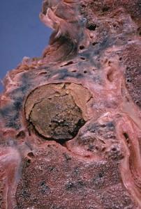 Aspergillom der Lunge