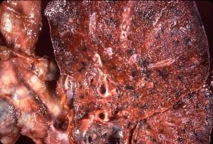 Cryptoccocose der Lunge