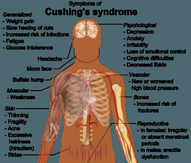 Cushing's-syndrome-symptome