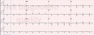 Dieses Bild zeigt ein EKG mit Niedervoltage