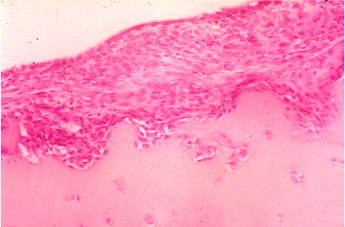 Eindringende Zellverbände rheumatoide Arthritis