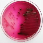 Escherichia-coli-auf-Endo-agar