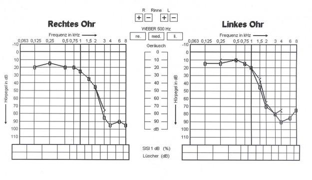 Graphen zur Lärmschwerhörigkeit