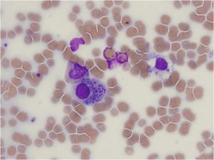 Histoplasma capsulatum in Leukozyten im Knochenmarksausstrich