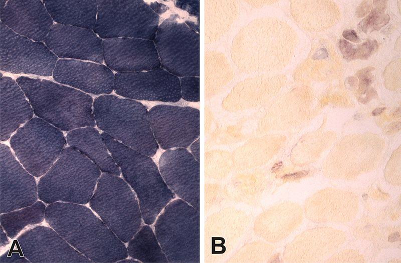 Muskelbiopsie mit Enzymhistochemie für Myophosphorylase