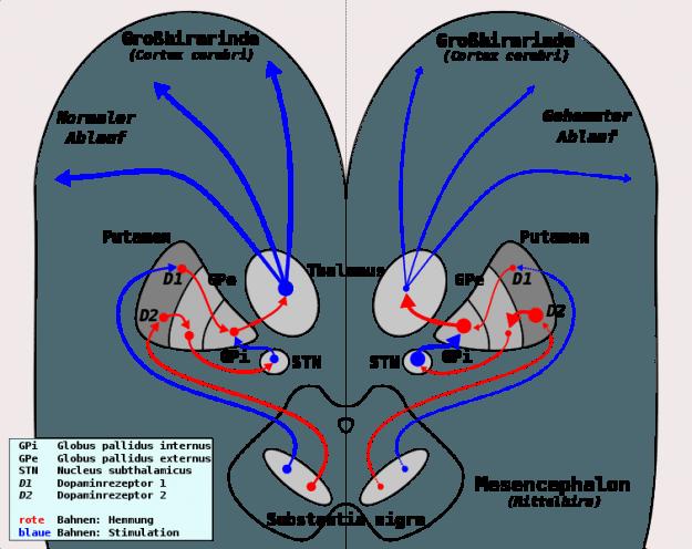 Parkinson Ablauf funktionelle Ebene