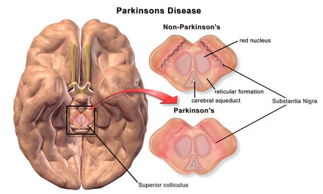 Parkinson Krankheit