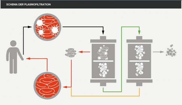 Diagramm von Plasmofiltration