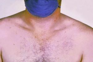 Roseolen-auf-der-Brust-eines-an-Typhus-erkrankten-Patienten