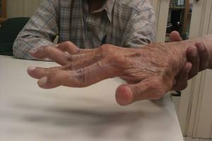 Schwanenhalsdeformität der Finger