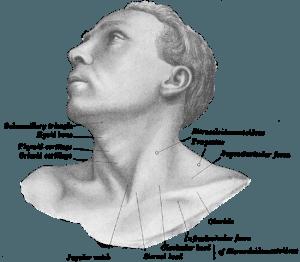 abbildung einer person mit Torticollis