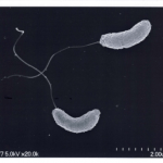 Vibiro-cholera-Elektronenmikroskopie