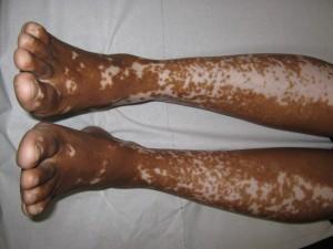 Vitiligo an den Beinen