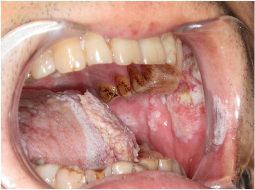 Zungenkrebs
